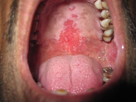 Oral Cancer as related to Soft Palate   Pictures