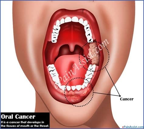 Oral Cancer|Causes|Symptoms|Treatment|Stages|Survival Rate ...
