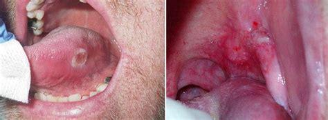 Oral Cancer: Detection, Treatment and Post therapeutic ...