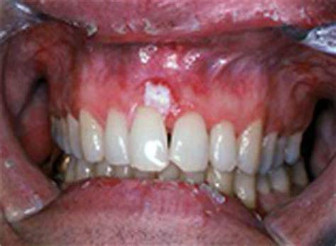 Oral Cancer Images   The Oral Cancer Foundation