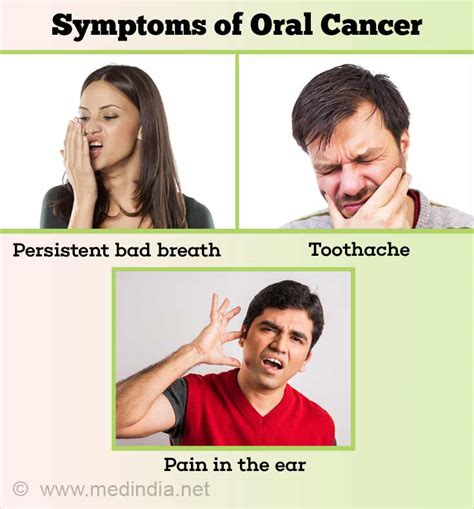 Oral Cancer | Mouth Cancer   Types, Causes, Symptoms ...