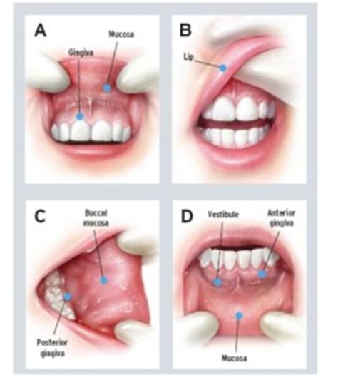 Oral Cancer Screening Examination   Pearly Whites Plus