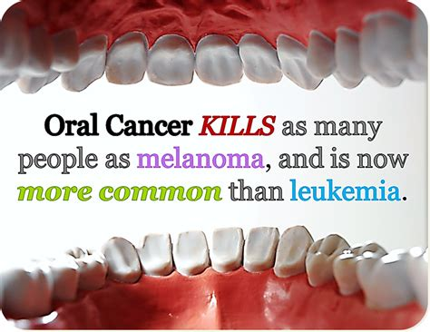 Oral Cancer   Sonoma County Family Dental