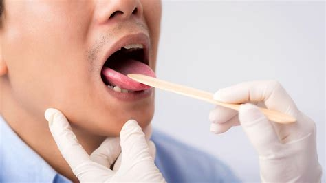 Oral Medicine   UCSF School of Dentistry