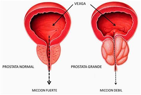 Orina Con Sangre: Causas, Síntomas Y Factores de Riesgo ...