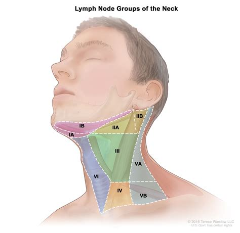 Oropharyngeal Cancer Treatment  Adult   PDQ –Health ...