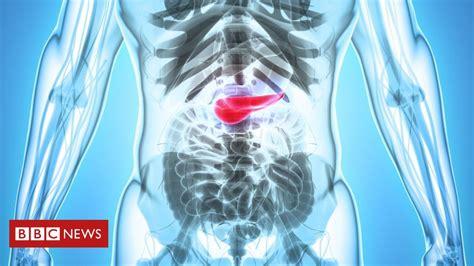 Os sintomas de câncer de pâncreas que muitas vezes passam ...