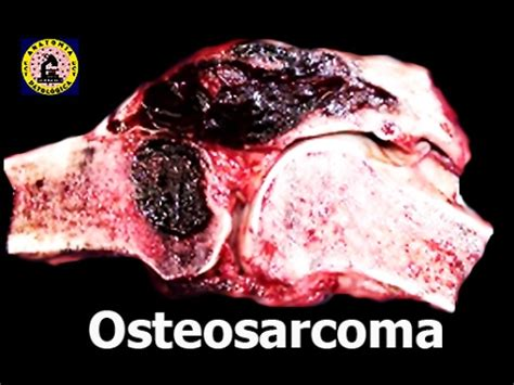 Osteosarcoma   Tumor de Hueso   YouTube