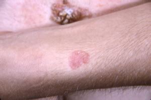 Other Types of Skin Cancer   Melanoma Research Alliance