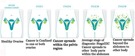 Ovarian Cancer: Best Hospitals, Doctors & Cost in India ...