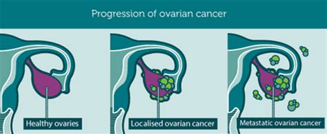 Ovarian Cancer Canada   About ovarian cancer