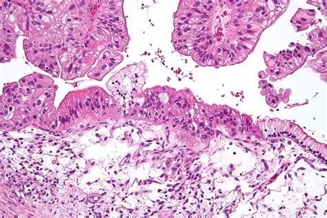 Ovarian mucinous tumor   Wikipedia