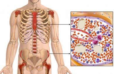 P A T H O S: Tecido Sanguíneo   Anemia Aplástica