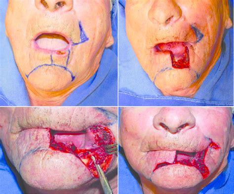 Paciente com carcinoma espinocelular de lábio inferior com ...