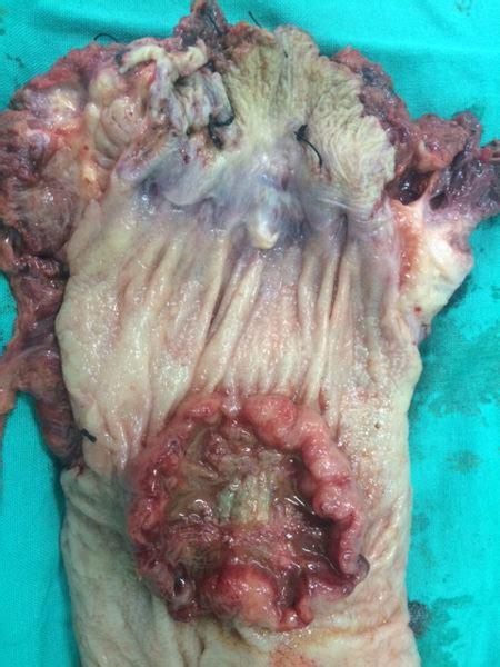 Paciente con Adenocarcinoma de Recto bajo Reseccin ...