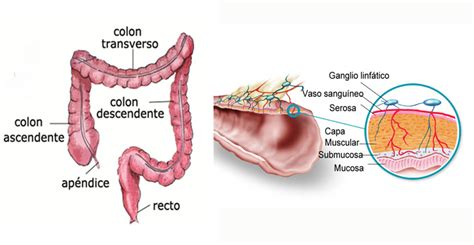 Pacientes Ostomizados: Cáncer de Colon y Recto