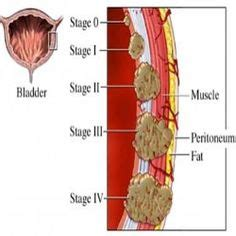 Paget s Disease