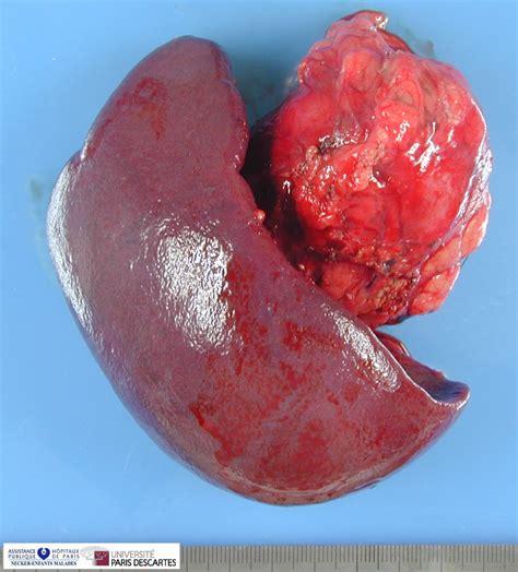 Pancreas: Pancreas Neuroendocrine Tumor