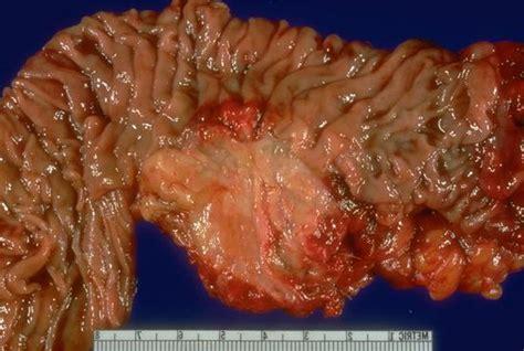 Pancreas: Tumor Pancreas