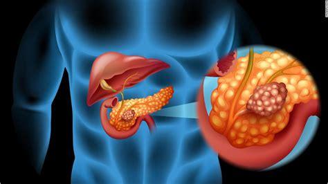 Pancreatic Cancer Drugs Market Share Analysis 2019 | Eli ...