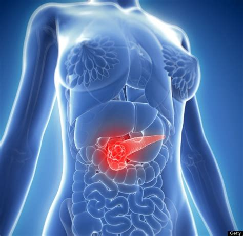 Pancreatic Cancer: Here s How To Spot The Symptoms ...