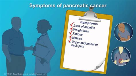 Pancreatic Cancer: Signs, Symptoms and Risk Factors   YouTube