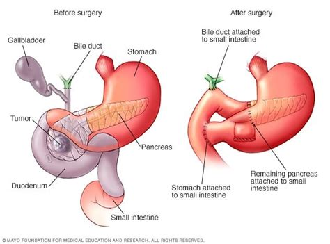 Pancreatic Cancer Treatment Market 2019 Analysis and ...