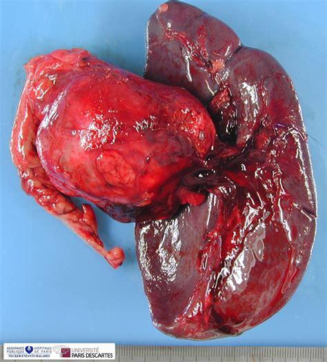 pancreatic solid pseudopapillary tumor   Humpath.com ...