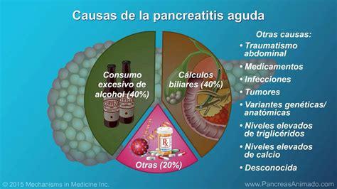 Pancreatitis aguda   YouTube