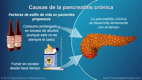 Pancreatitis crónica   Presentación de diapositivas