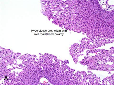 Papillary urothelial neoplasm bladder, Enterobius ...