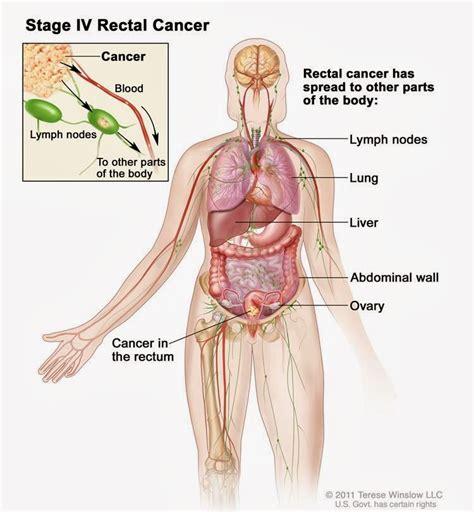 PARIWARA: Rectal Cancer Image