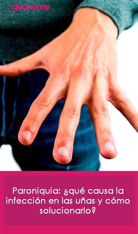 Paroniquia: ¿qué causa la infección en las uñas y cómo ...