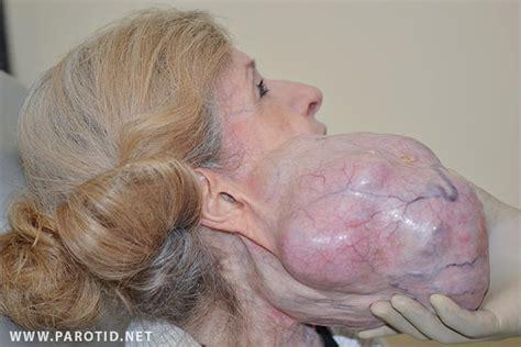 Parotid Gland Tumor Surgery: Photos & Recovery   Parotid ...