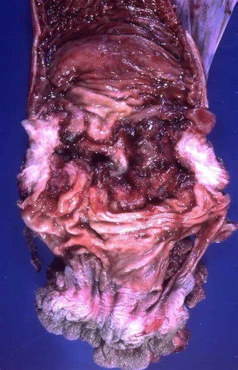 Pathology images: Gross pathology, histopathology, histology