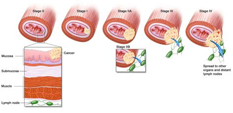 Pathology Outlines   TNM staging of esophageal carcinomas