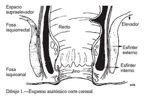 Patología Anal Benigna  página 2    Monografias.com