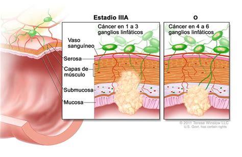 Patología: Caso Clínico: cáncer de Colon