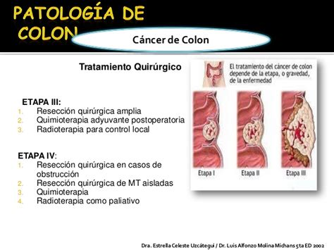 Patologia de colon.! keyber