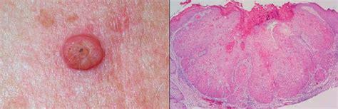 PATOLOGÍA HUMANA: PIEL: CARCINOMA ESPINOCELULAR  epidermoide