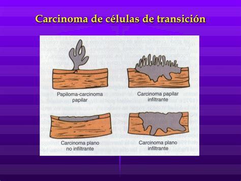 Patologia Vejiga 2