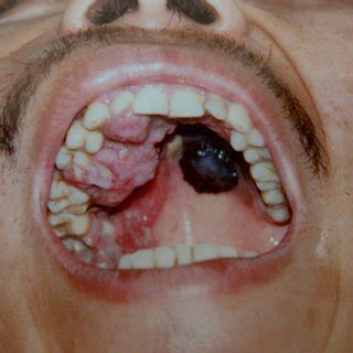 PDF  Malignant melanoma of the oral cavity. Review of the ...