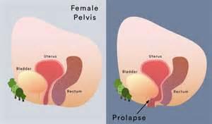 Pelvic Organ Prolapse Symptoms & Treatment | My Gynae