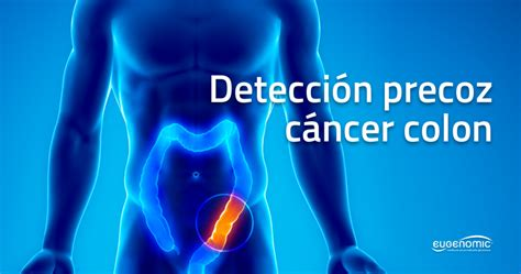 Perfil genómico para la detección precoz del riesgo de ...