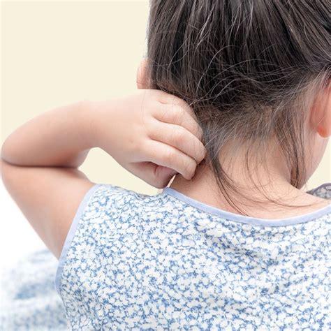 Picor En La Cabeza En Niños Causas   Importancia de Niño