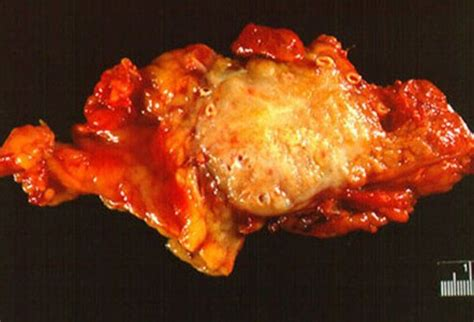 Picture of Cancerous Conditions   Pancreatic Tumor
