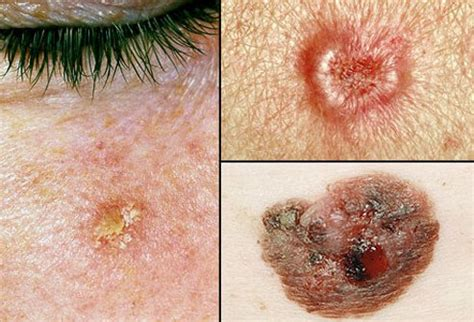 Picture Of Skin Cancer Picture Image on RxList.com