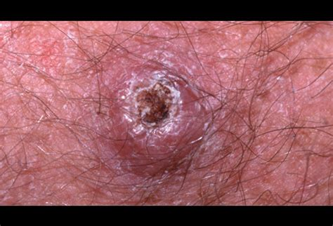 Picture of Squamous Cell Carcinoma Hyperkeratosis Picture ...