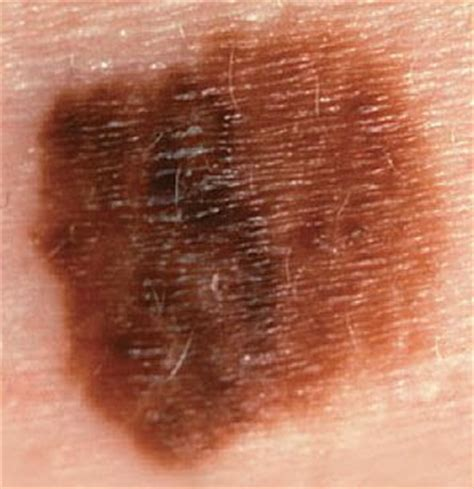 Pictures of skin cancer: Melanoma skin cancer