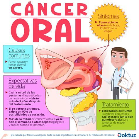 Pin de Doktuz em Cáncer   Salud enfermedad, Cáncer oral e ...